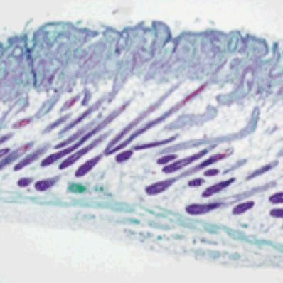Гистология без инъекции филлера