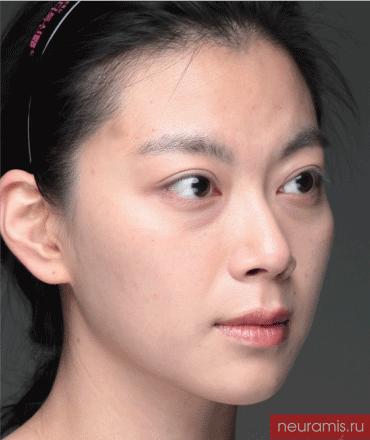 Отзывы Нейрамис до процедуры женщина 32 года возраст зона филлера лоб носогубная складка скулы подбородок