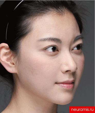 Отзывы Нейрамис после процедуры женщина 32 года возраст зона филлера  лоб носогубная складка скулы подбородок