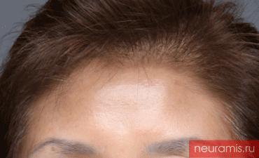 Отзывы Нейрамис до процедуры женщина 57 лет возраст зона филлера лоб