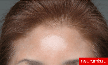 Отзывы Нейрамис после процедуры женщина 57 лет возраст зона филлера лоб