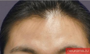 Отзывы Нейрамис до процедуры женщина 32 года возраст зона филлера лоб