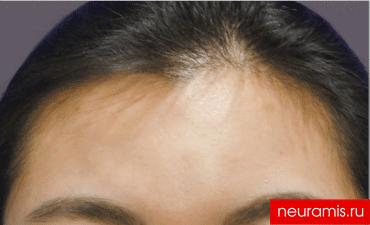 Отзывы Нейрамис после процедуры женщина 32 года возраст зона филлера лоб