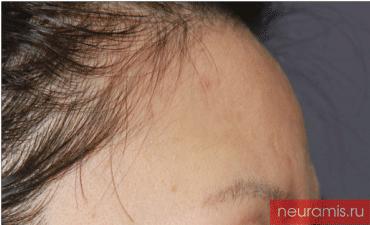 Отзывы Нейрамис до процедуры женщина 43 года возраст зона филлера лоб