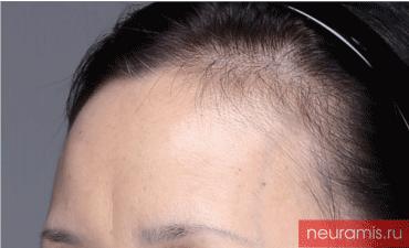 Отзывы Нейрамис до процедуры женщина 53 года возраст зона филлера лоб