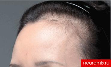 Отзывы Нейрамис после процедуры женщина 53 года возраст зона филлера лоб