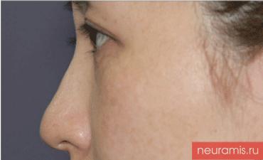 Отзывы Нейрамис до процедуры женщина 32 года возраст зона филлера нос