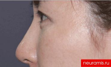 Отзывы Нейрамис после процедуры женщина 32 года возраст зона филлера нос