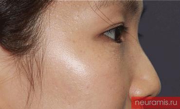 Отзывы Нейрамис до процедуры женщина 29 лет возраст зона филлера нос