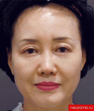 Результаты Нейрамис после процедуры женщина 52 года возраст зона филлера нос лоб носогубная складка скулы
