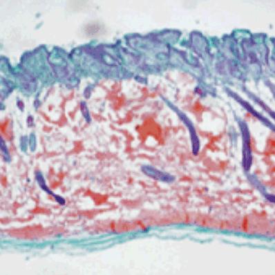 Гистология с инъекцией филлера Neuramis Deep
