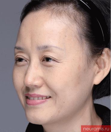 Результаты Нейрамис до процедуры женщина 52 года возраст зона филлера нос лоб носогубная складка скулы