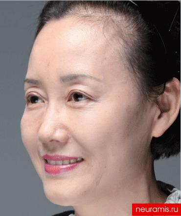 Результаты Нейрамис до женщина 52 года нос лоб носогубная складка скулы