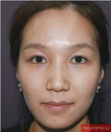 Отзывы Нейрамис до процедуры женщина 29 лет возраст зона филлера нос носогубная складка скулы подбородок