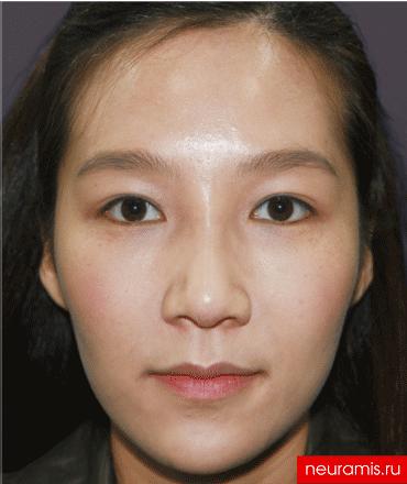 Отзывы Нейрамис после процедуры женщина 29 лет возраст зона филлера нос носогубная складка скулы подбородок