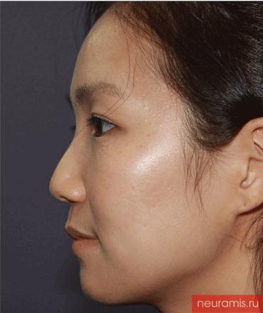 Отзывы Нейрамис до процедуры женщина 29 лет возраст зона филлера нос носогубная складка скулы подбородок 2