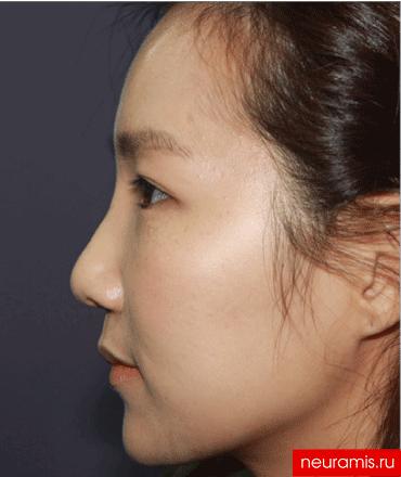 Отзывы Нейрамис после процедуры женщина 29 лет возраст зона филлера нос носогубная складка скулы подбородок 2