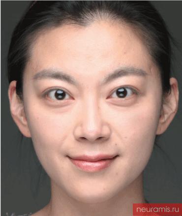 Отзывы Нейрамис до женщина 32 года возраст зона филлера лоб носогубная складка скулы подбородок